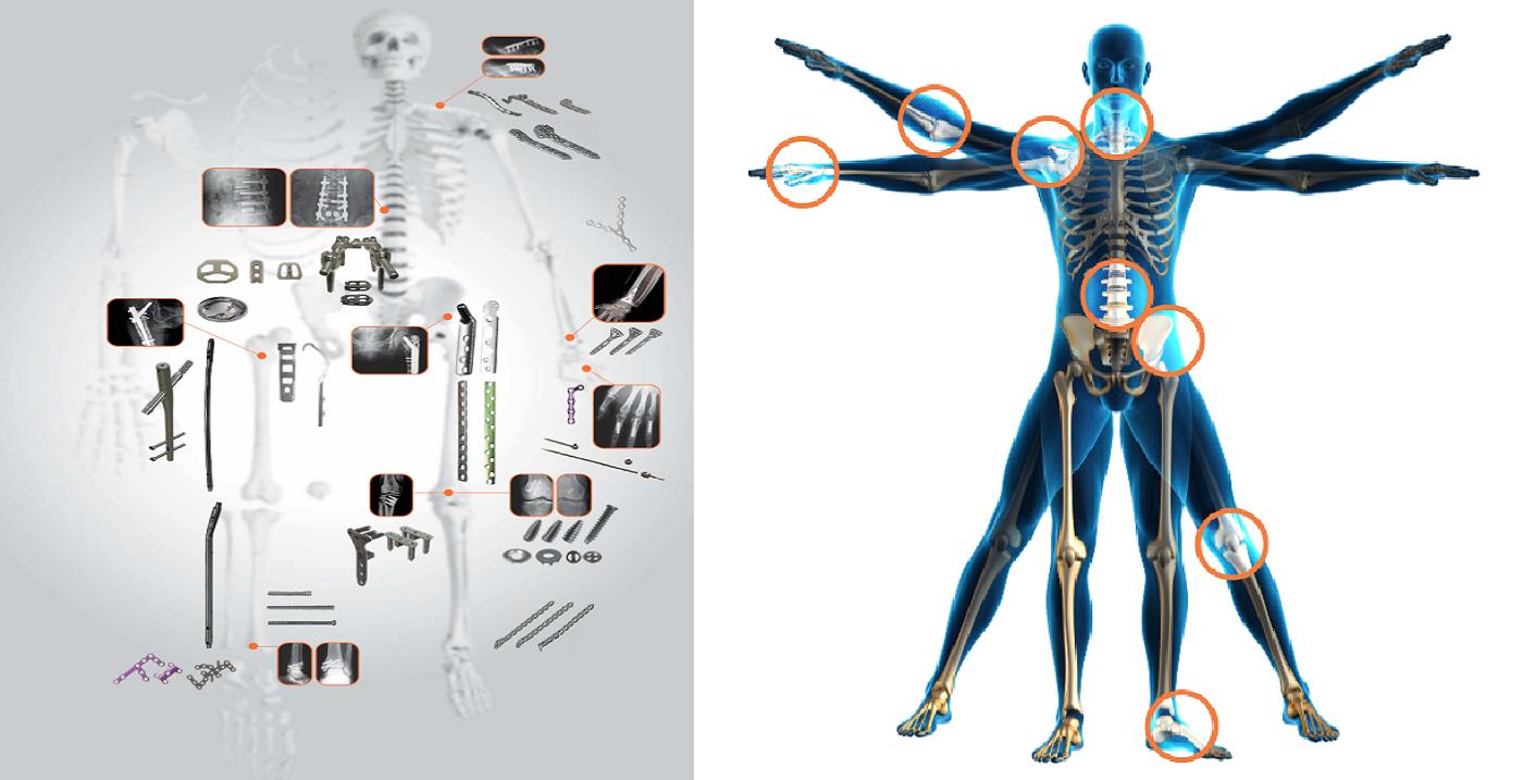 Orthopedic Implants, Instruments